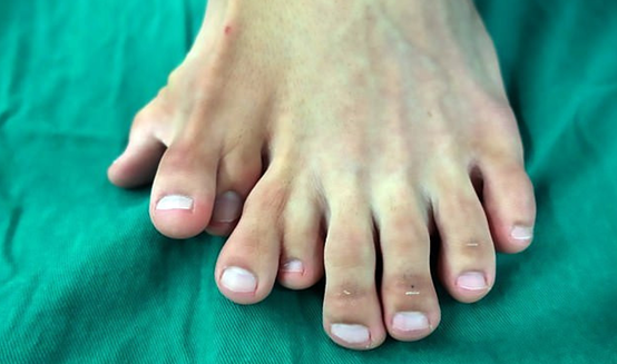 9 toes, Polydactyly.