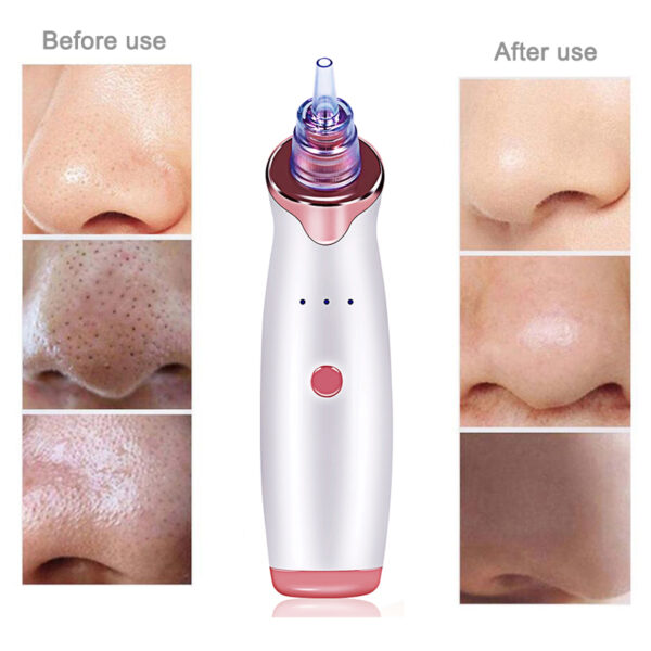 Electric Acne Remover Point Noir Blackhead Vacuum Extractor Tool Black Spots